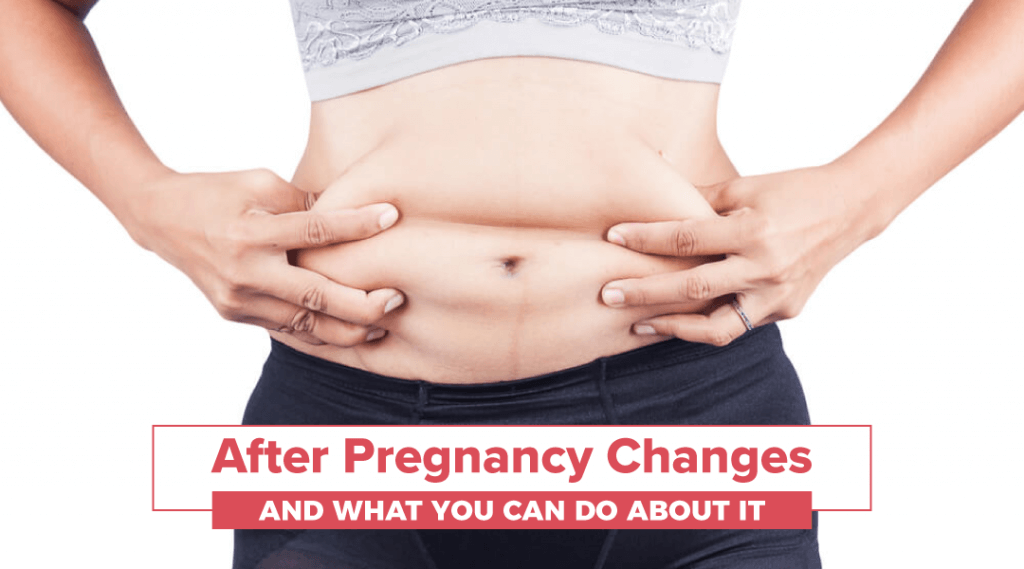 After Pregnancy Changes and What You Can Do About It